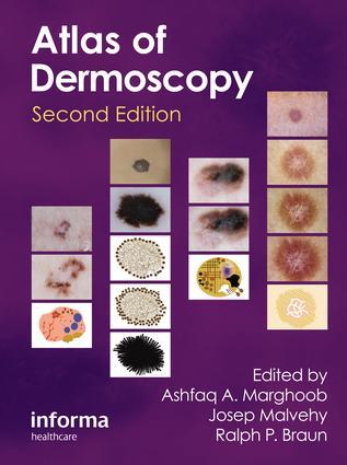 An Atlas of Dermoscopy: 2nd Edition (Hardback) book cover