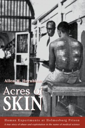 Acres of Skin: Human Experiments at Holmesburg Prison, 1st Edition (Hardback) book cover