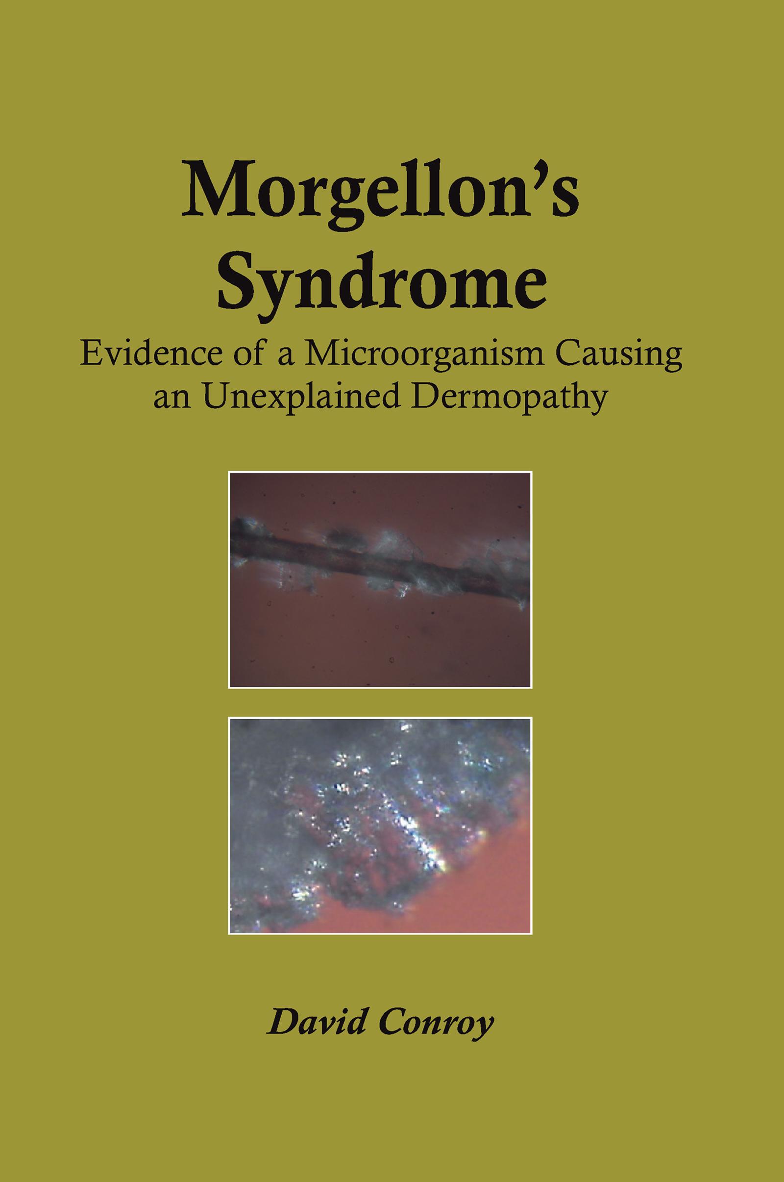 Morgellon's Syndrome: 1st Edition (e-Book) book cover