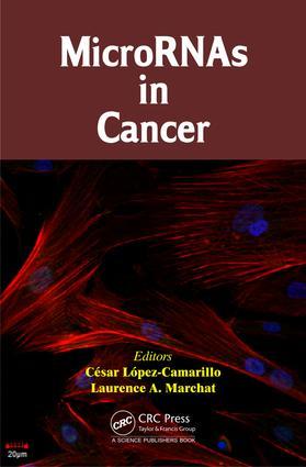 MicroRNAs IN PROSTATE CANCER