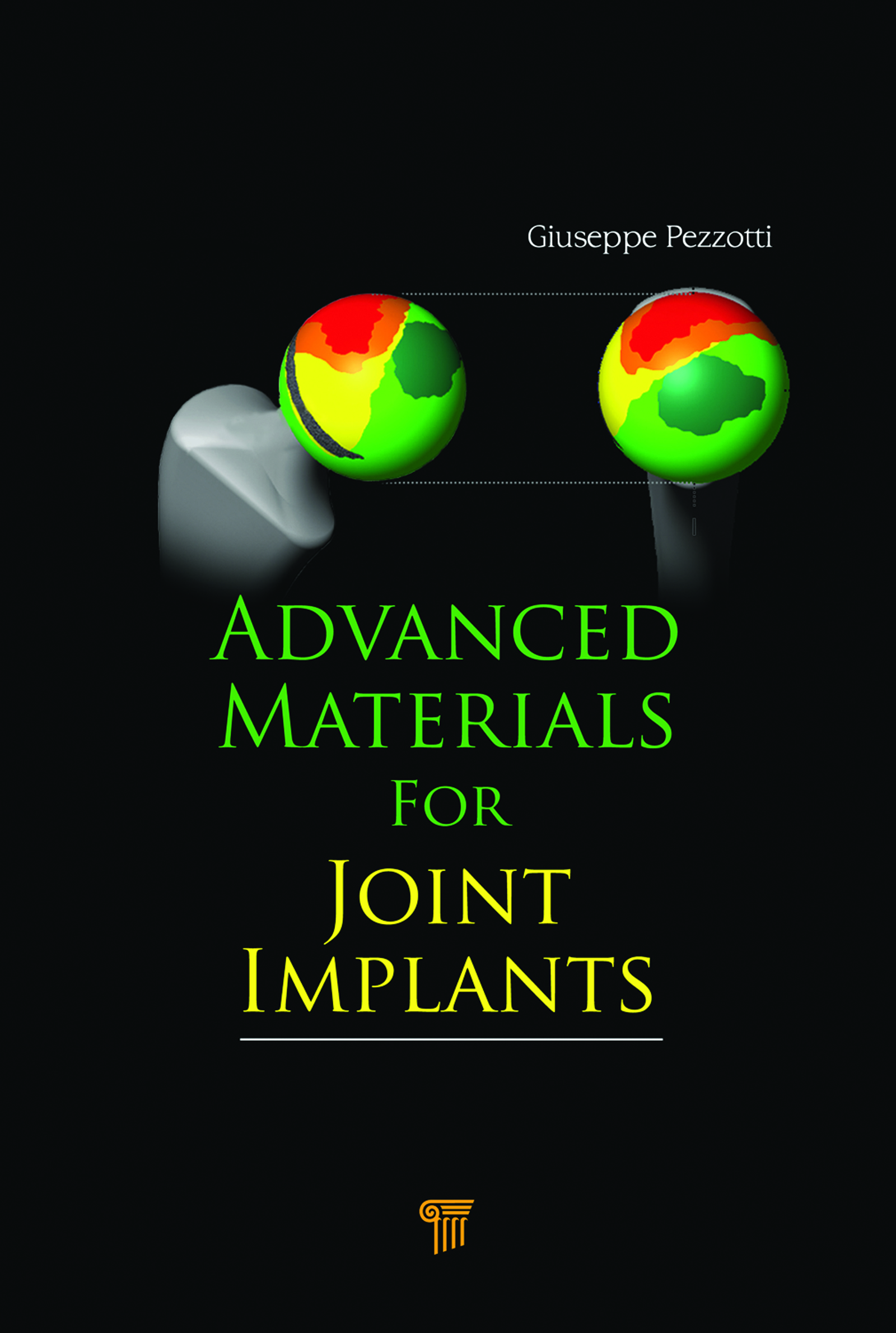 Advanced Materials for Joint Implants: 1st Edition (e-Book) book cover