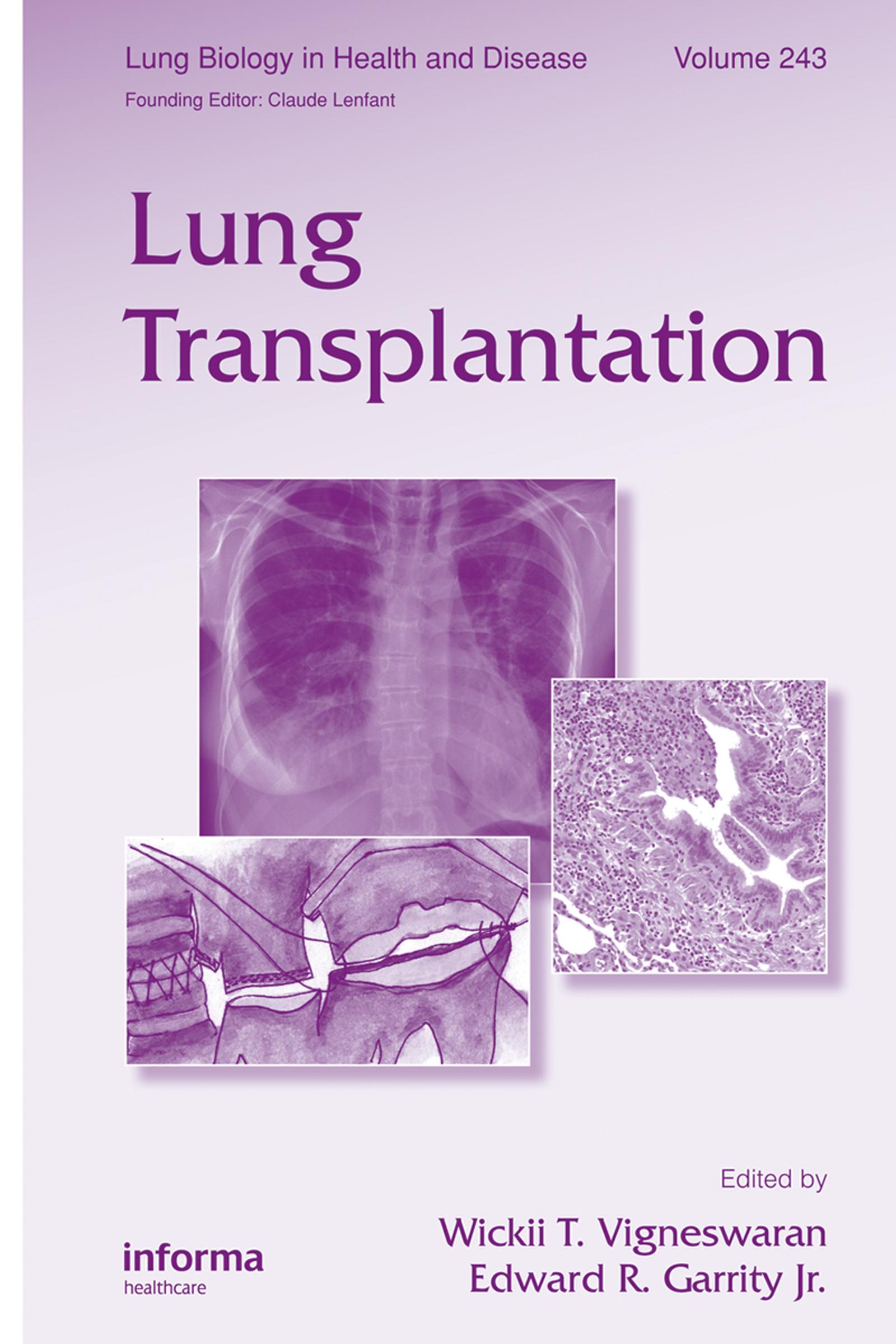 Lung Transplantation: 1st Edition (e-Book) book cover