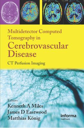 Multidetector Computed Tomography in Cerebrovascular Disease: CT Perfusion Imaging, 1st Edition (e-Book) book cover