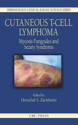 Cutaneous T-Cell Lymphoma: Mycosis Fungoides and Sezary Syndrome, 1st Edition (e-Book) book cover