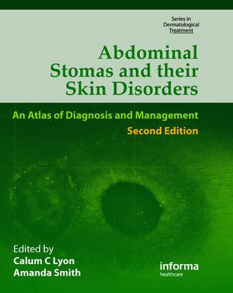 Infl ammatory Bowel Disease—Stomas and Nutrition