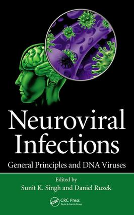 Neuroviral Infections