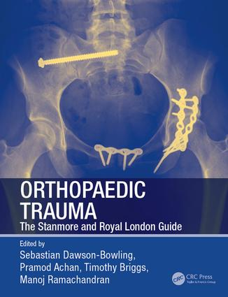 Orthopaedic Trauma: The Stanmore and Royal London Guide, 1st Edition (e-Book) book cover