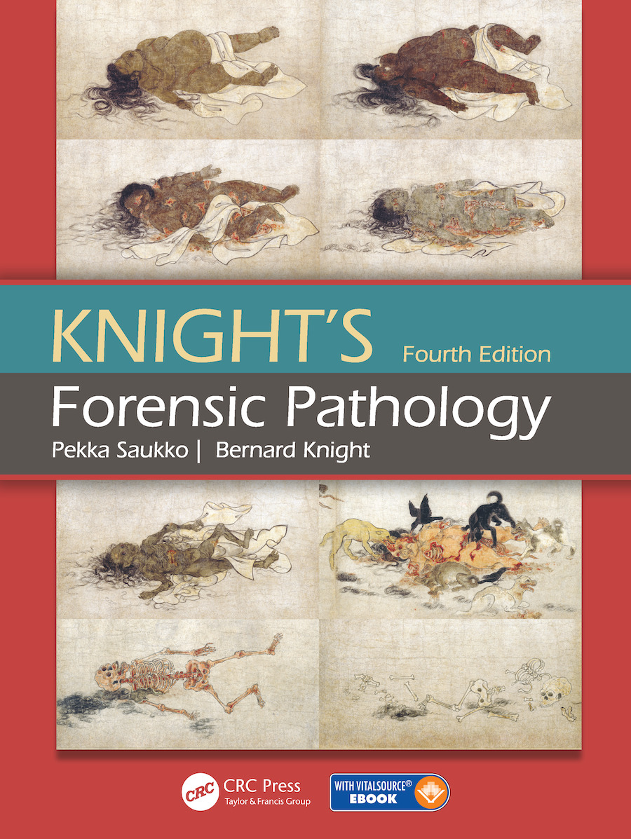 Knight's Forensic Pathology: 4th Edition (e-Book) book cover