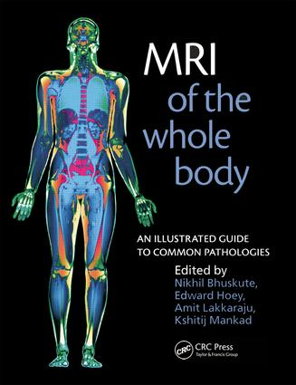 MRI of the Whole Body: An Illustrated Guide for Common Pathologies, 1st Edition (e-Book) book cover
