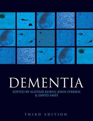 Risk factors for Alzheimer's disease
