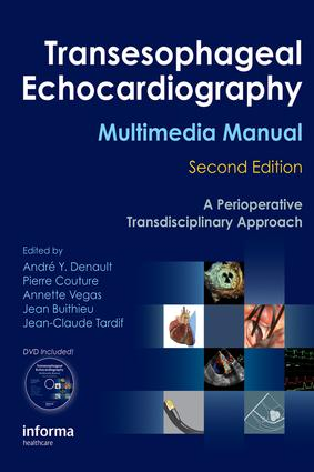 Transesophageal Echocardiography Multimedia Manual: A Perioperative Transdisciplinary Approach, 2nd Edition (e-Book) book cover