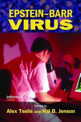 Epstein-Barr Virus: 1st Edition (e-Book) book cover