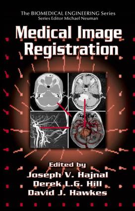 Registration of MR and CT Images for Clinical Applications