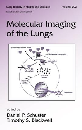 Molecular Imaging of the Lungs: 1st Edition (Hardback) book cover
