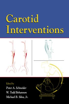 Carotid Interventions: 1st Edition (e-Book) book cover