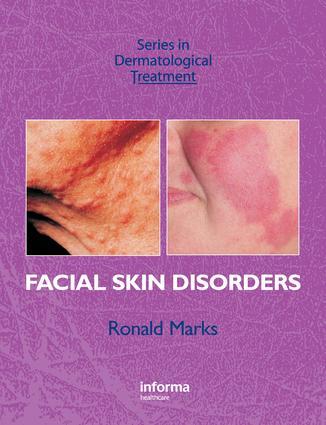 Facial Skin Disorders: 1st Edition (e-Book) book cover