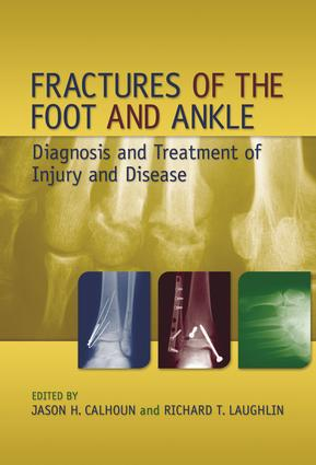 Fractures of the Foot and Ankle: Diagnosis and Treatment of Injury and Disease, 1st Edition (Hardback) book cover