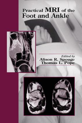 Practical MRI of the Foot and Ankle: 1st Edition (Hardback) book cover