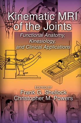 Kinematic MRI of the Joints: Functional Anatomy, Kinesiology, and Clinical Applications, 1st Edition (e-Book) book cover