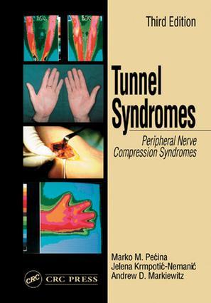 Flexor Carpi Ulnaris Muscle Syndrome