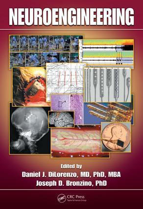 Deep Brain Stimulation for Pain Management