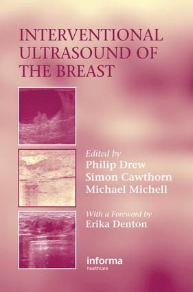 Interventional Ultrasound of the Breast: 1st Edition (e-Book) book cover