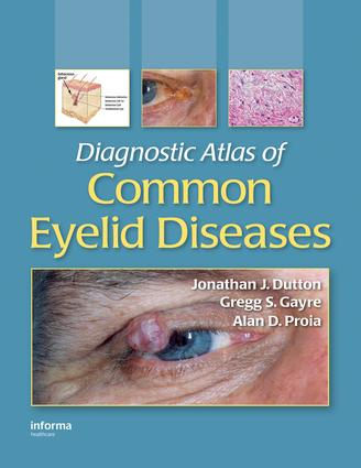 Diagnostic Atlas of Common Eyelid Diseases: 1st Edition (e-Book) book cover