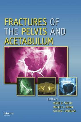 Fractures of the Pelvis and Acetabulum: 1st Edition (Hardback) book cover