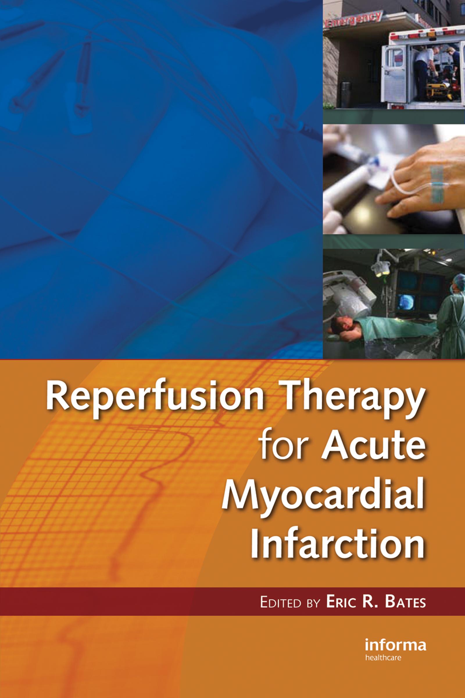 Facilitated Percutaneous Coronary Intervention in Acute Myocardial Infarction