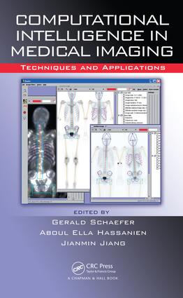 Computational Intelligence in Medical Imaging: Techniques and Applications, 1st Edition (e-Book) book cover