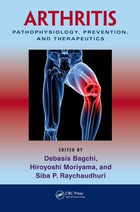 Safety and Ef—cacy of a Unique Undenatured Type II Collagen in the Treatment of Arthritis