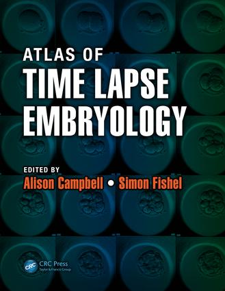 Atlas of Time Lapse Embryology: 1st Edition (e-Book) book cover