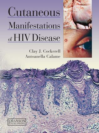 Cutaneous Manifestations of HIV Disease: 1st Edition (e-Book) book cover