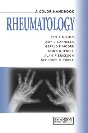 Rheumatology: A Color Handbook, 1st Edition (e-Book) book cover