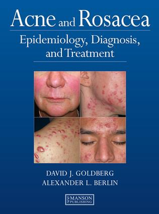 Acne and Rosacea: Epidemiology, Diagnosis and Treatment, 1st Edition (e-Book) book cover