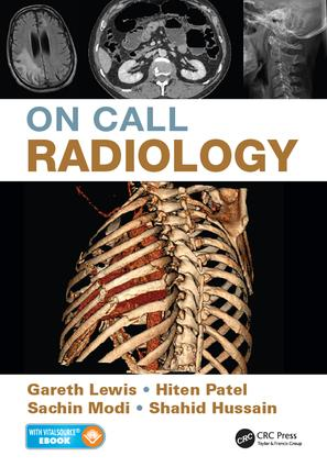 On Call Radiology: 1st Edition (e-Book) book cover