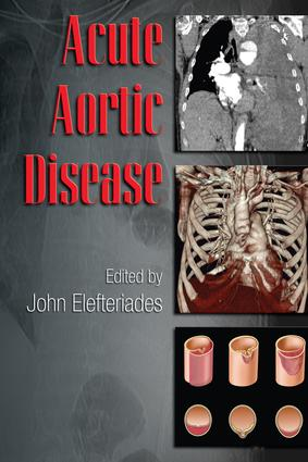 Acute Aortic Disease: 1st Edition (e-Book) book cover