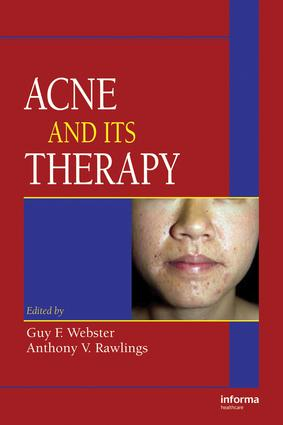 Acne and Its Therapy: 1st Edition (e-Book) book cover