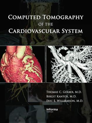 Hybrid Imaging Combining Cardiovascular Computed Tomography with Positron Emission Tomography