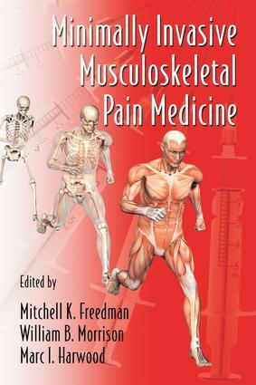 Minimally Invasive Musculoskeletal Pain Medicine: 1st Edition (e-Book) book cover
