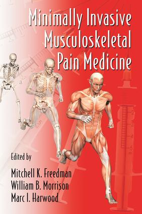 Minimally Invasive Musculoskeletal Pain Medicine: 1st Edition (Hardback) book cover