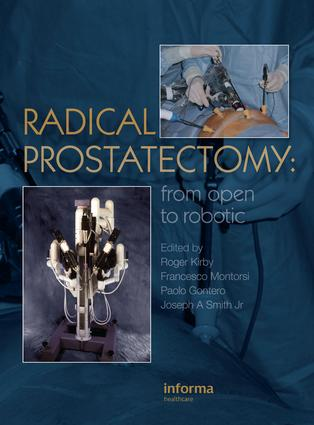 Radical Prostatectomy: From Open to Robotic, 1st Edition (e-Book) book cover
