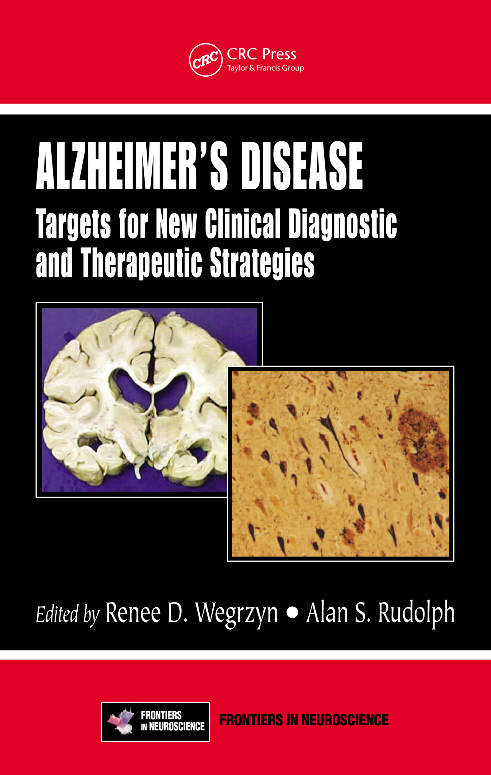 Alzheimer's Disease: Targets for New Clinical Diagnostic and Therapeutic Strategies, 1st Edition (e-Book) book cover