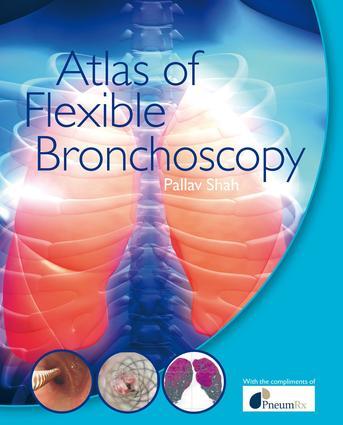 Atlas of Flexible Bronchoscopy: 1st Edition (e-Book) book cover