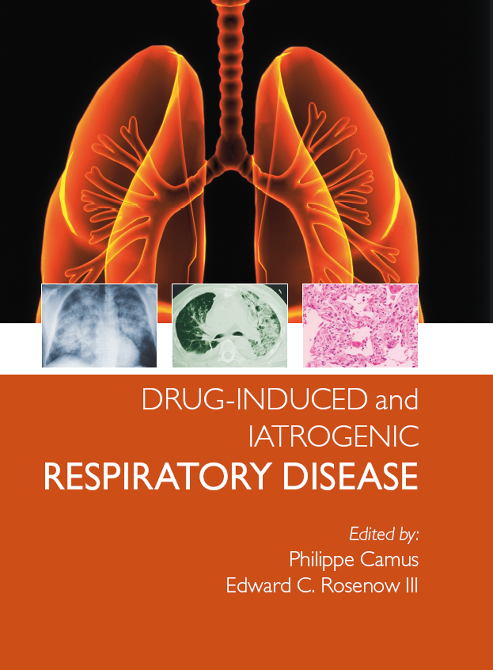 Drug-induced and Iatrogenic Respiratory Disease: 1st Edition (e-Book) book cover