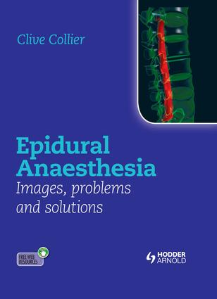 Epidural Anaesthesia: Images, Problems and Solutions: 1st Edition (e-Book) book cover