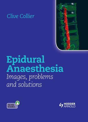 Failed epidural blocks and misplaced catheters