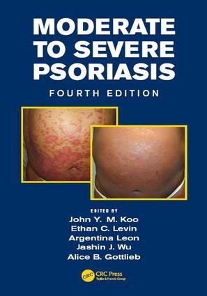 Moderate to Severe Psoriasis