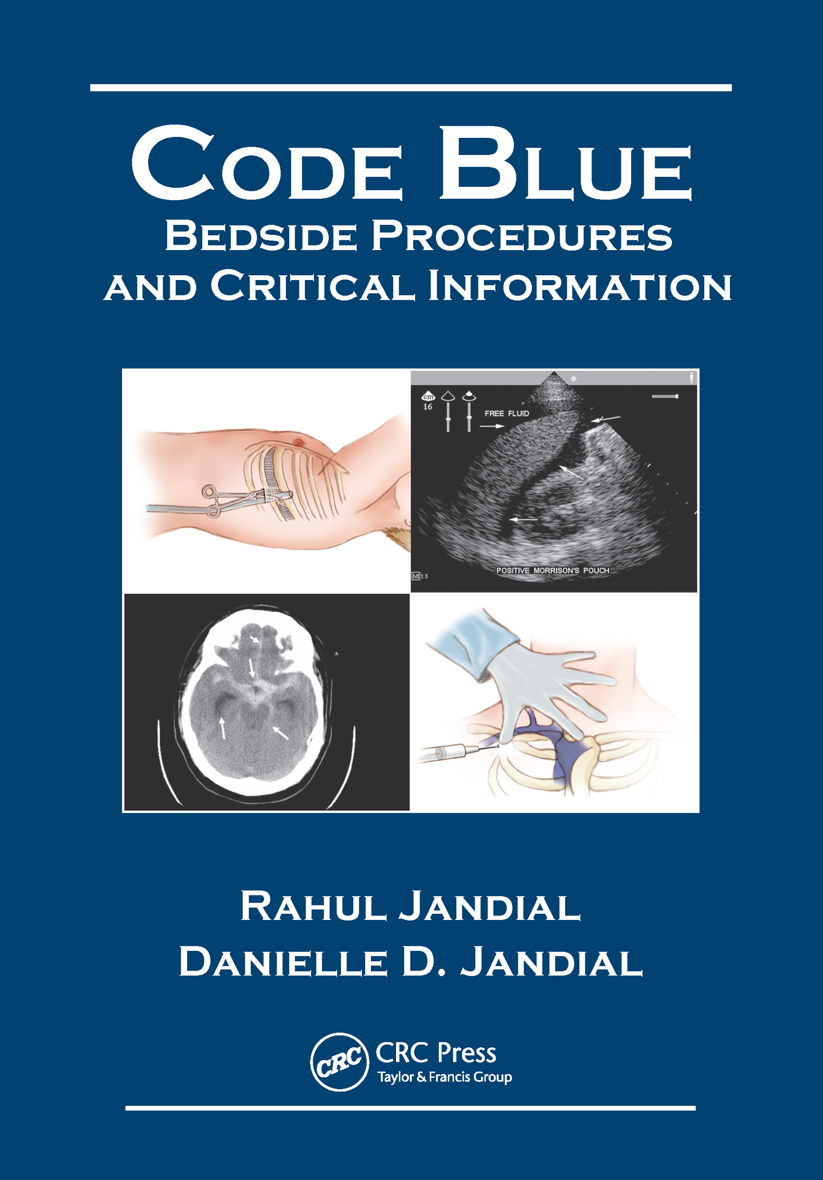 Code Blue: Bedside Procedures and Critical Information, 1st Edition (e-Book) book cover