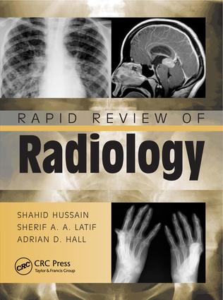 Rapid Review of Radiology: 1st Edition (e-Book) book cover